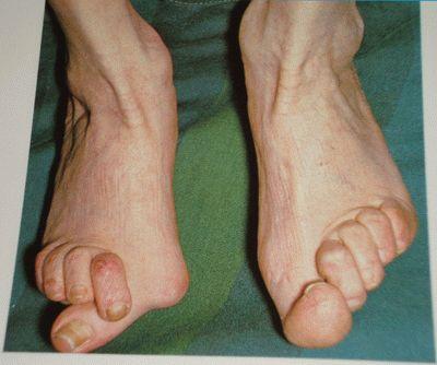 Остеоартроз суставов пальцев ног лечение таурин сустав
