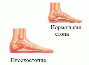Плоскостопие ноги