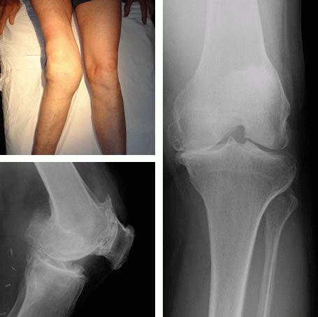 остеоартроз 2 3 степени коленного сустава