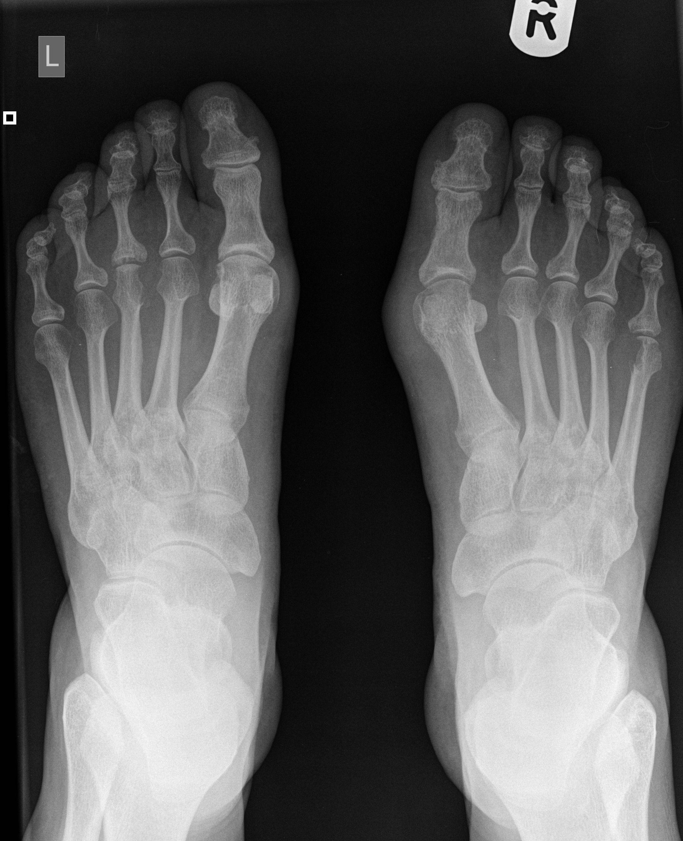 Реактивный артрит мелких суставов стоп фото