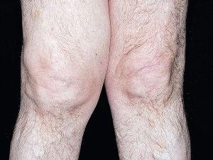 Изменение внешнего вида колена