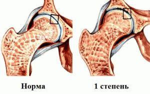 Изображение - Упражнение при артрозе 3 степени тазобедренного сустава 51-2-300x188