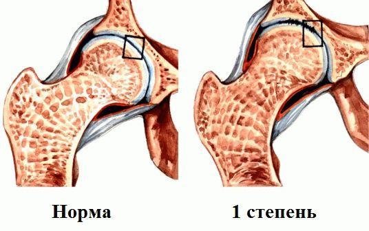 Коксартроз тазобедренного сустава 2 степени лечение причины и симптомы