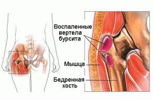 Изображение - Бурсит тазобедренного сустава симптомы 11-1-300x196