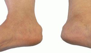 Бурсит ноги
