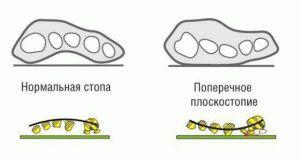 Типы плоскостопия