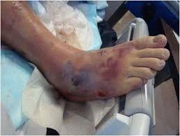 Запущенная болезнь ног