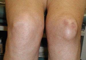 Отёчность колена
