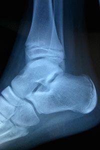 Рентген для диагностики