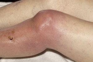 Гнойный артрит