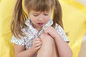 Идиопатический артрит у ребёнка