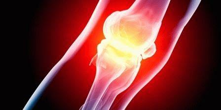 Можно ли греть опухоль суставов почему болят кости и суставы после родов