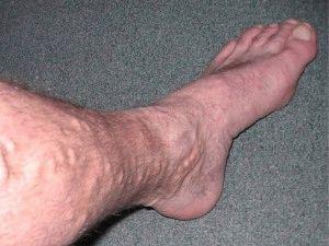 Вздутие вены на ноге
