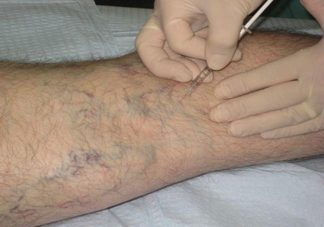 Симптомы и лечение варикозного расширение вен на ногах
