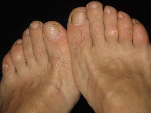 Мозоль нарост на суставе второго пальца ноги хрустят суставы по всему телу как лечить