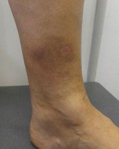 Пигментация ног при варикозе