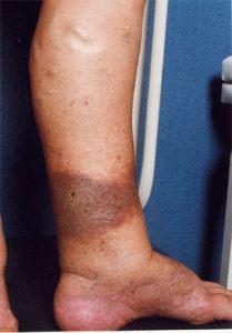Осложнение варикоза