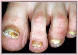 Ногти поражены грибком
