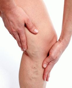 Боль в ногах из-за варикоза