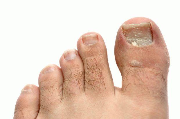 Как лечить грибок ногтей на ногах йодом: правила, рецепты и советы