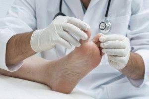 Дерматолог осматривает ноги