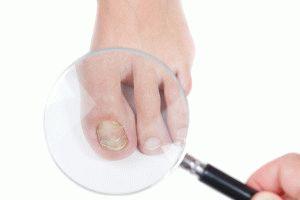Осмотр ногтей микологом