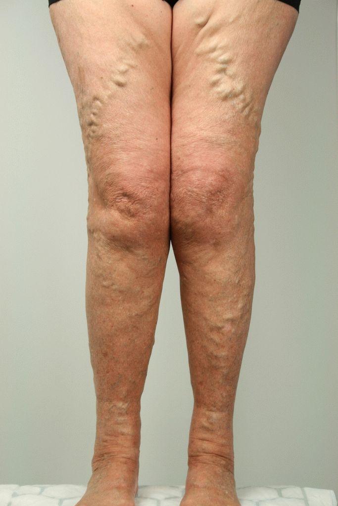 Чем грозит варикозное расширение вен на ногах