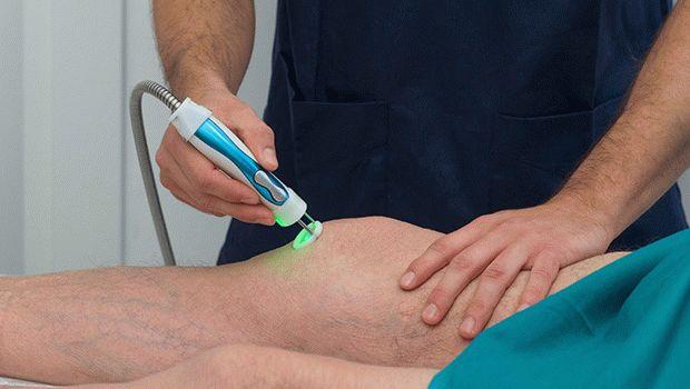 Лазерна терапия при артрит