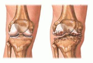 Эрозия колена