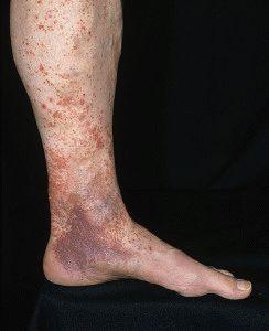 Последствия варикозной болезни