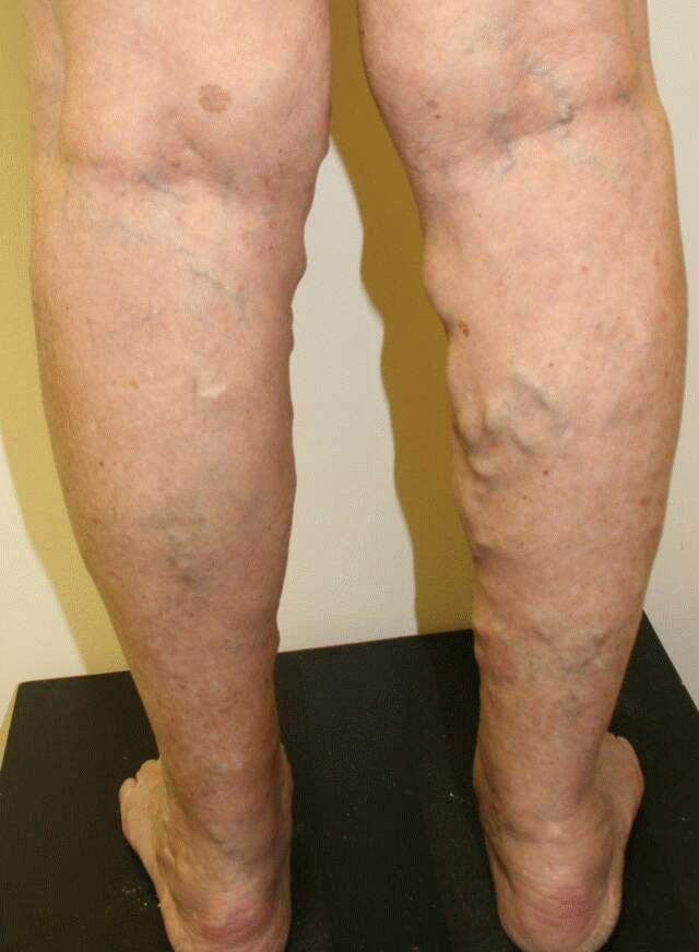 Лечение пиявками суставов и варикоза если болит и ноет колено