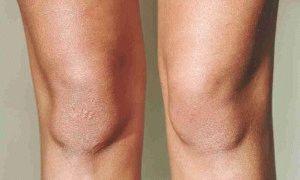 Артрит ноги