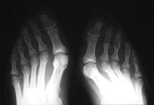Поражение артритом суставов