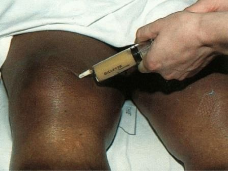Эндопротезирование коленного сустава за границей
