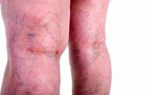 Краснота ног при варикозе