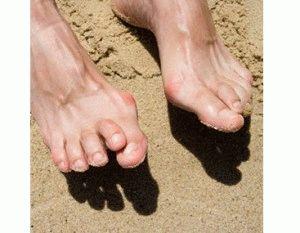 Артрит на пальцах ног