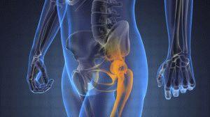 Изображение - Деформирующий артрозо артрит тазобедренного сустава 851-300x168