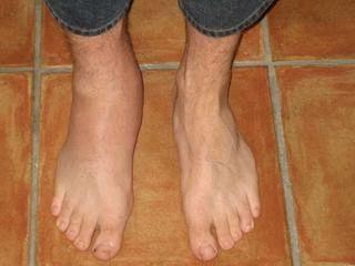 Артрит и артроз: симптомы, профилактика и лечение