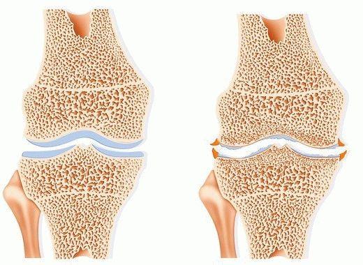 Подагрозен артрит - Симптоми и Лечение