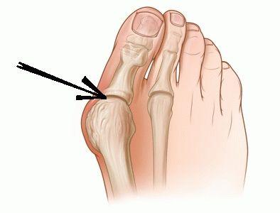 Артроз, артрит плюсне-фалангового сустава артроз первой степени тазобедренного сустава