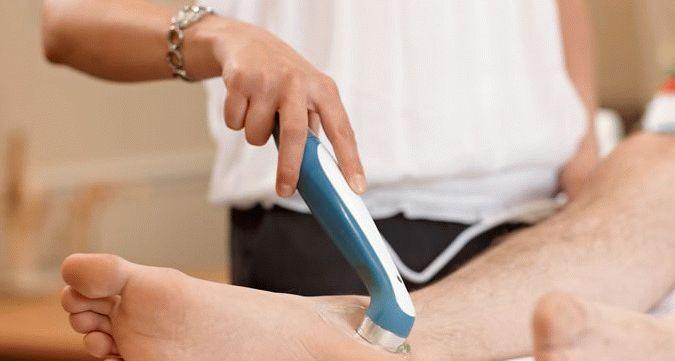 Артрит плюснефалангового сустава стопы особенности и методы лечения
