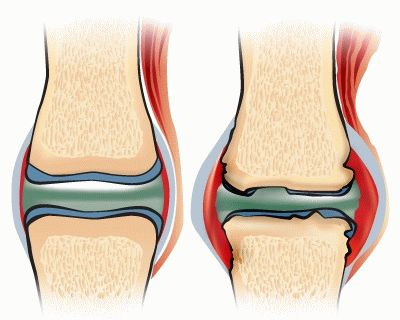 Артроз лодыжки симптомы и лечение