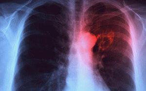 Туберкулёз больного
