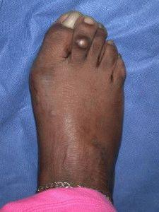 Мозоль на пальцах ног