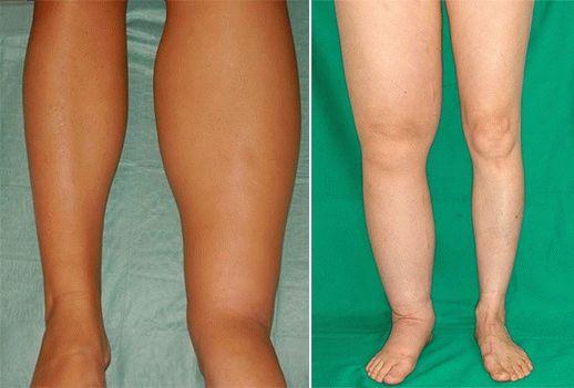 Лечение косточек на ногах - . Клиника ортопедии и реабилитации