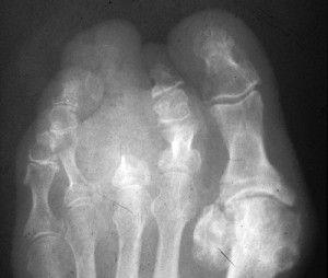 Воспаление костного мозга сустава