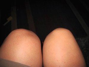 Опухшее колено