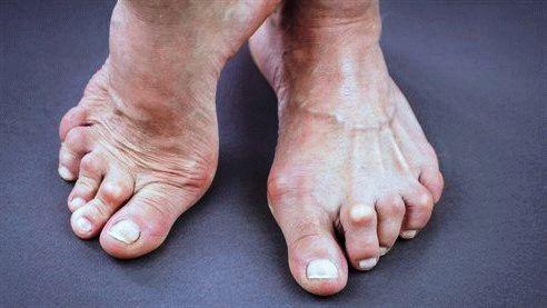 Болит сустав на мизинце ноги тутор на лучезапястный сустав