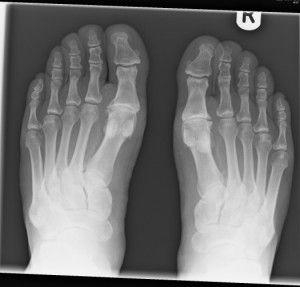 Артроз ног