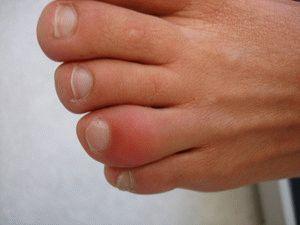 Опухание пальца